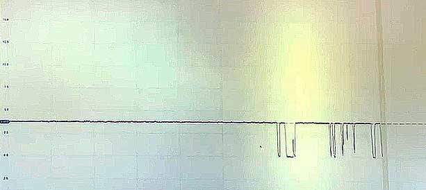 señal resistencia capturada con osciloscopio